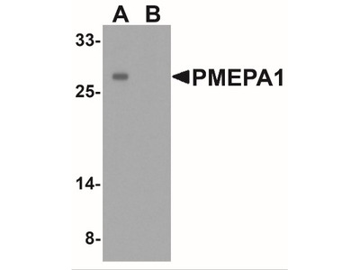 Rabbit Polyclonal TMEPAI Antibody