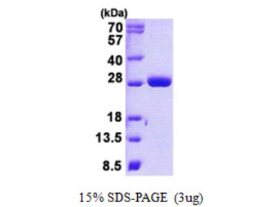 Recombinant Human MOB4A Protein
