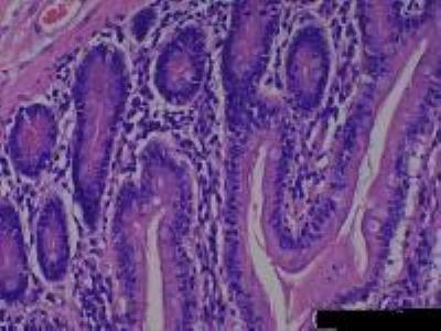Small Intestine Jejunum Tissue Slides (Normal)