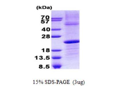 Lambda5 / IGLL1 Protein