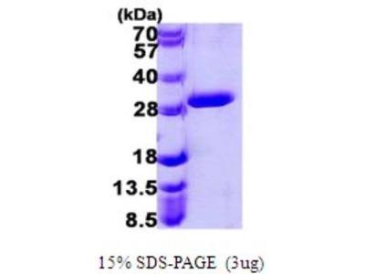UROS Protein