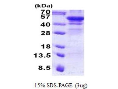 Recombinant Human Hexosaminidase A / HEXA Protein