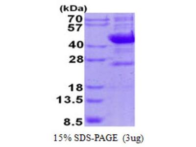 Recombinant Human NEU-1 / Sialidase-1 Protein