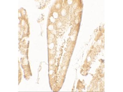 Rabbit Polyclonal CFTR Antibody