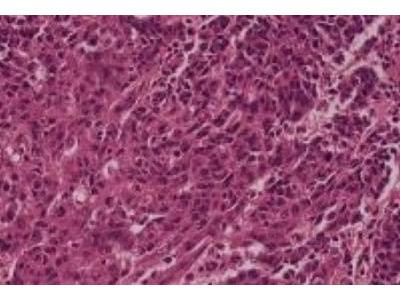 Lung Slide