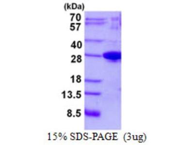Josephin1 Protein