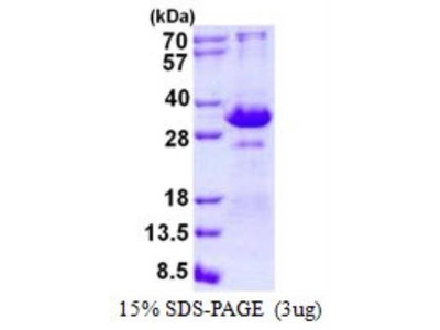 TIRAP (TLR2 and TLR4) Recombinant Protein