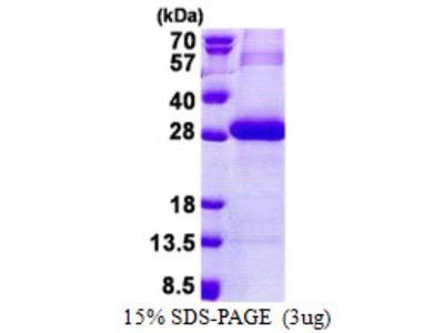 Recombinant Human Trypsin 3 / PRSS3 Protein