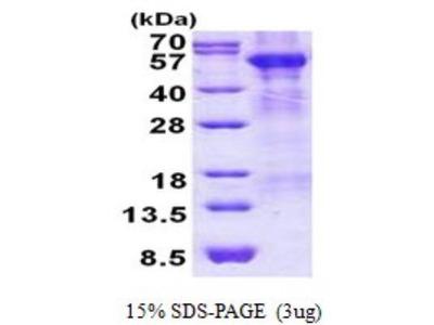 Arylsulfatase A /ARSA Recombinant Protein