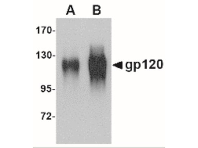 Goat Polyclonal HIV-1 gp120 Antibody