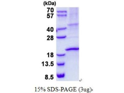 Recombinant Human RNASE3 Protein