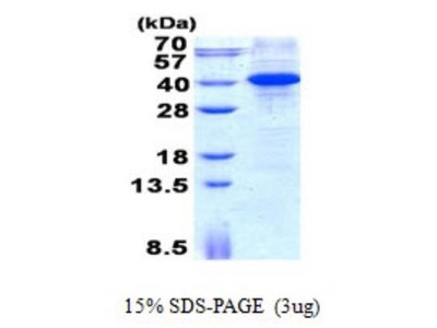 Recombinant Human MyD88 Protein