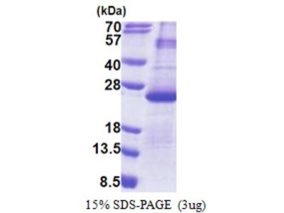 Recombinant Human DUSP26 Protein