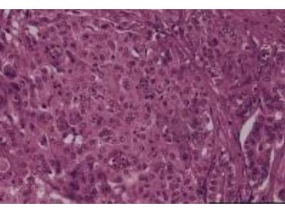 Liver Tissue Slides (Cholangiocarcinoma)