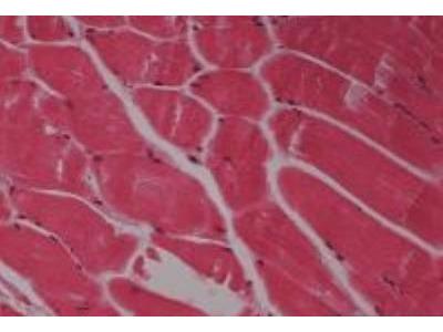 Skeletal Muscle Tissue Slides (Normal)