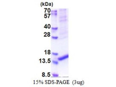 ARMS2 Recombinant Protein