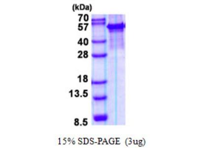 Arylsulfatase G/ARSG Recombinant Protein