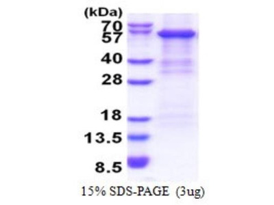 Recombinant Human Complement Factor B Protein