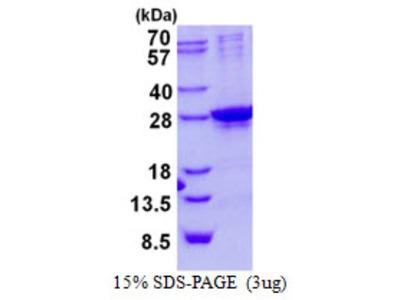 SIX6 Recombinant Protein