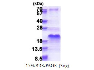 DSS1 Recombinant Protein