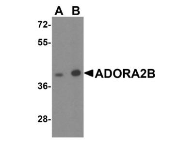 Adenosine A2b R Antibody