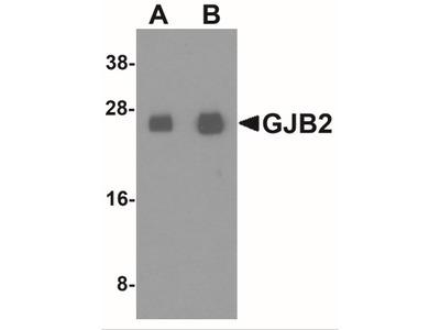 Rabbit Polyclonal Connexin 26 / GJB2 Antibody