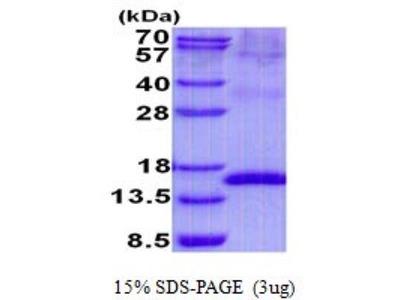 Uroplakin II Recombinant Protein