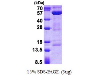 AMSH / STAMBP Protein