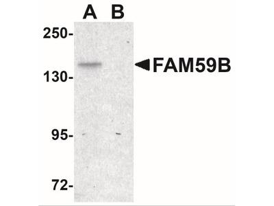 Rabbit Polyclonal FAM59B Antibody