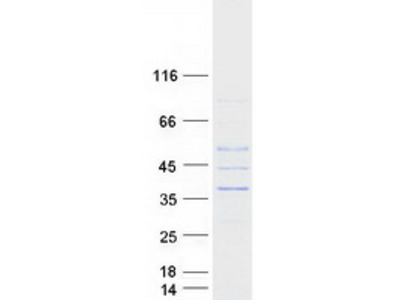 FTS (AKTIP) (NM_022476) Human Recombinant Protein