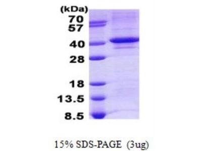 TDP1 Recombinant Protein
