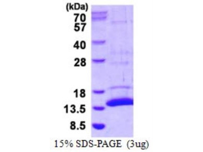 S100A7A Recombinant Protein