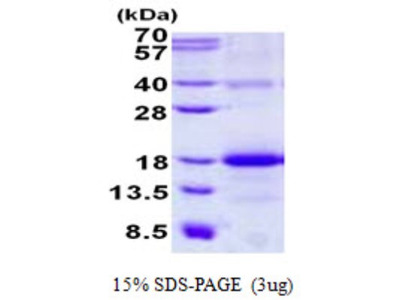 AICL Recombinant Protein