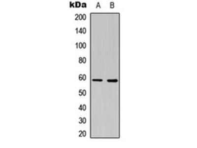 Estrogen Recepter beta 2 antibody