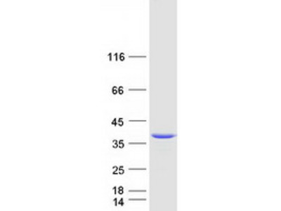 Recombinant protein of human N-acetylneuraminate pyruvate lyase (dihydrodipicolinate synthase) (NPL)