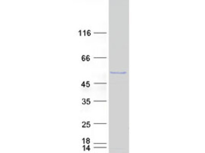 SPATA2L (NM_152339) Human Recombinant Protein