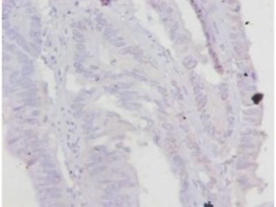Troponin T, cardiac muscle antibody