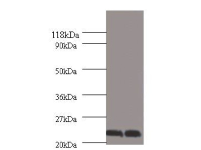 Chorionic somatomammotropin hormone antibody
