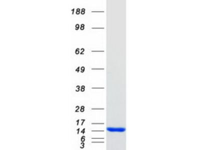S100A9 (NM_002965) Human Recombinant Protein