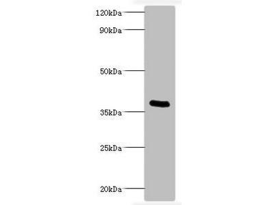 Bordetella pertussis Pertussis toxin subunit 1 antibody