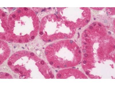 SLC29A1 antibody