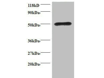 Rhombotin-1 antibody