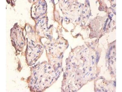 Protein phosphatase 1 regulatory subunit 11 antibody