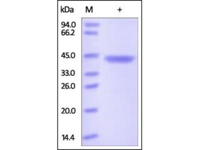 Human Chitinase 3-like 1 protein