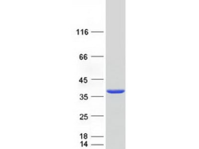 Spermidine synthase (SRM) (NM_003132) Human Recombinant Protein