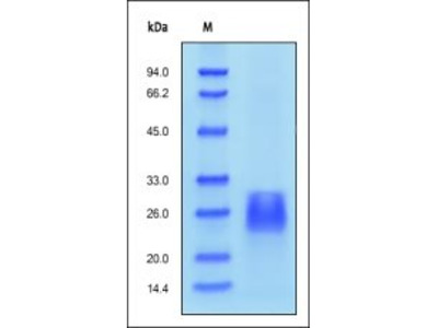 Human Activin RIIB protein