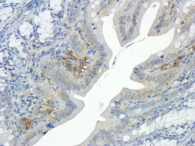 Integrin beta 1 antibody