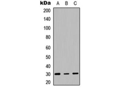 HLA-DQB1 antibody
