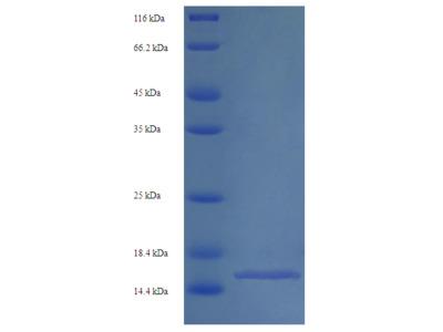 Human SLC34A2 protein