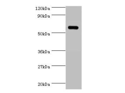 Tyrosyl-tRNA synthetase, cytoplasmic antibody